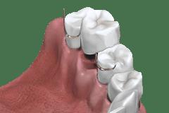 Klammerprothese