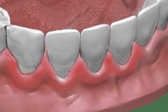 Parodontalbehandlung Ohne GKV